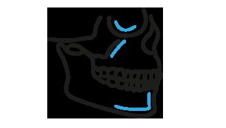 Otwarta, stabilna osteosynteza złamań wyrostka kłykciowego żuchwy 7