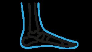 KURS PFAS - stopa końsko-szpotawa/stopa wydrążona 26