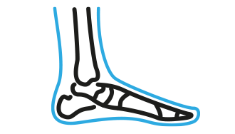 Moduł II - Techniki małoinwazyjne w korekcji deformacji stopy - poziom podstawowy 7